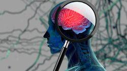 Contro Alzheimer e Parkinson risultati troppo scarsi. Anche Pfizer abbandona la
