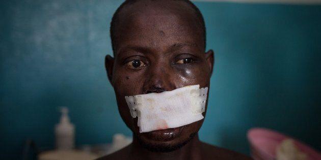 L'orrore nella Repubblica Centrafricana: in 30mila in fuga dalle