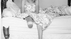 La modella che ha perso la gamba a causa dell'assorbente interno ha subito l'amputazione anche