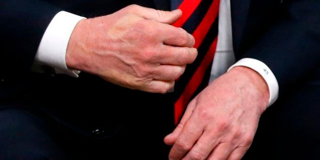 The imprint of French President Emmanuel Macron's thumb can be seen across the back of U.S. President...