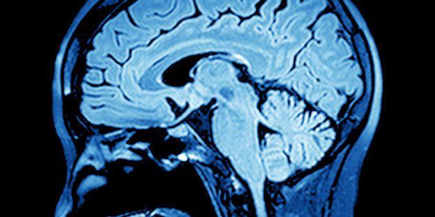 L'aneurisma cerebrale fa ancora
