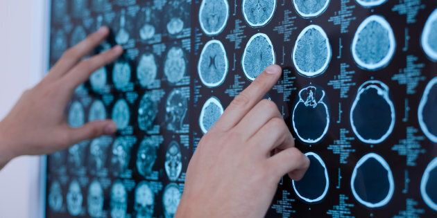 Ricerca italo-spagnola scopre meccanismo causa delle metastasi al