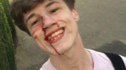 Picchiato perché gay, pubblica la foto sorridente su Facebook: