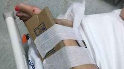All'ospedale di Reggio Calabria manca il gesso. Fratture 'curate' con il