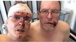Fumettista italiano e marito presi a colpi di spranga dai vicini di casa in