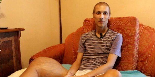 Luca Cardillo è morto. Il 23enne che combatteva contro un raro tumore alla gamba non ce l'ha