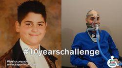 La #10yearschallenge di Paolo racconta uno storia di coraggio e
