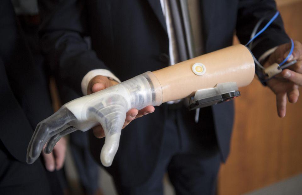 Uno dei prototipi della mano protesica poliarticolata