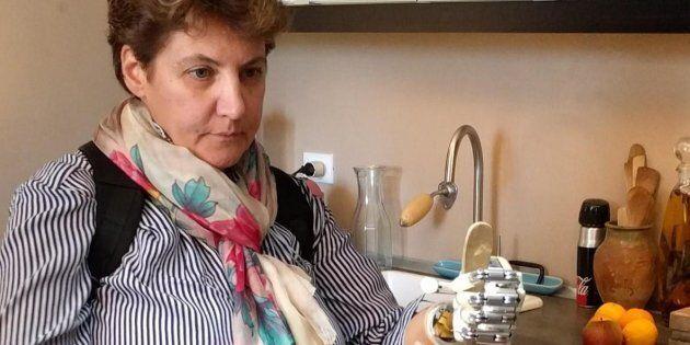 La prima mano bionica che imita il tatto impiantata ad una donna