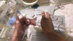Nato prematuro, pesava 268 grammi. Ora il bebè più piccolo del mondo sta