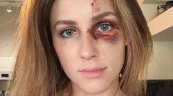 Melissa, picchiata dall'ex ragazzo per le foto su Instagram: