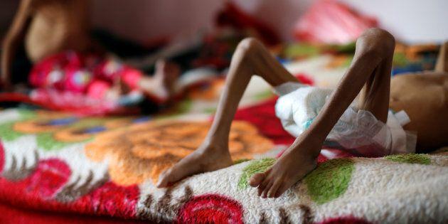 La crisi in Yemen si aggrava: in arrivo la peggiore carestia mondiale degli ultimi 100