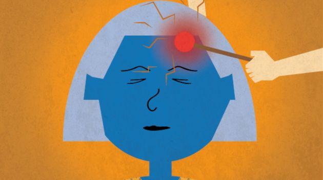 Dejad de decir que mis migrañas son 'solo' un dolor de