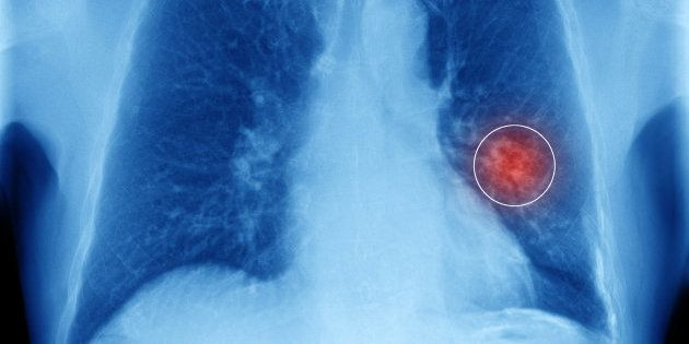 Rivoluzione nella cura del tumore al polmone: via libera alla immunoterapia per i pazienti in stadio