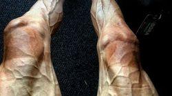 Questa foto mostra l'impatto devastante del tour de France sul corpo