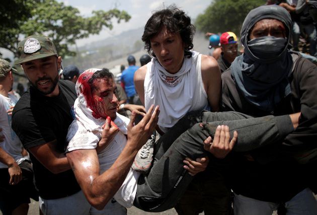 A demonstrator wounded in the clashes with government