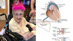 Una donna ha vissuto per 99 anni senza sapere di avere gli organi