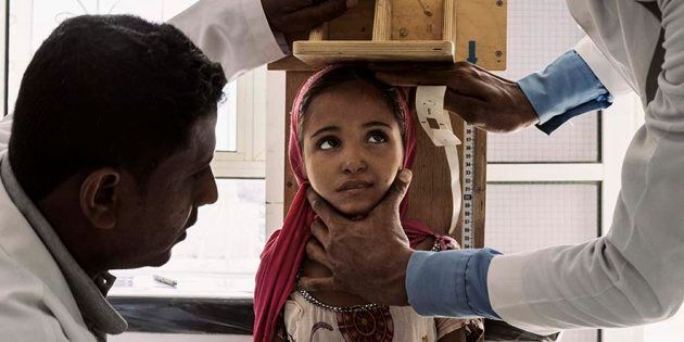 ASLAM, YEMEN - DECEMBER 6th, 2018:Marwah Hareb Mohammed Abdullah, 10, is measured at a clinic in Aslam,...