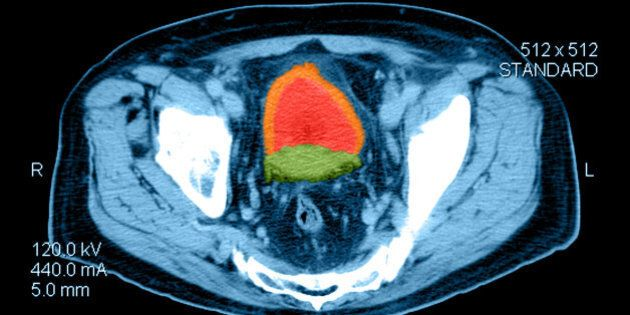 Color enhanced axial (cross sectional) CT image through the pelvis in a person with prostate cancer. Shown is an enlarged prostate (green) secondary to cancer and thickening of the bladder wall (orange) consistent with bladder out obstruction from the enla