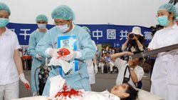 Le trafic d'organes en Chine, un «génocide des temps