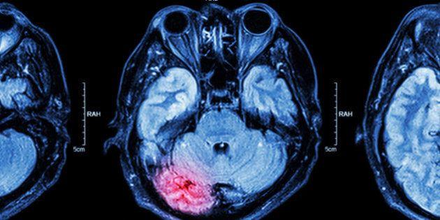 MRI of brain : brain