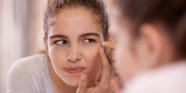 Il existe un facteur héréditaire important dans la transmission de l'acné.