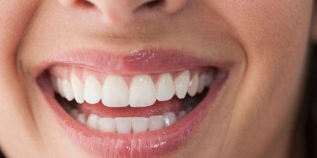 Épouser une fille qui n'avait plus ses dents naturelles et portait déjà ses deux prothèses dentaires...