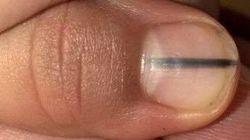 Une bande noire sur l'ongle: symptôme inattendu du cancer de la peau qui devrait tous nous