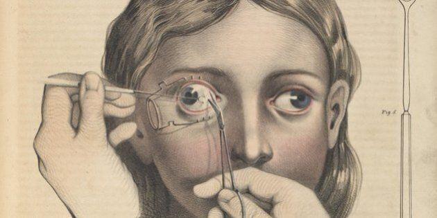 Ces dessins douteux servaient pour les chirurgies à
