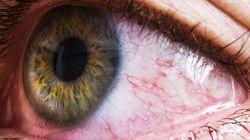 8 conseils pour traiter vos allergies si vous portez des verres de