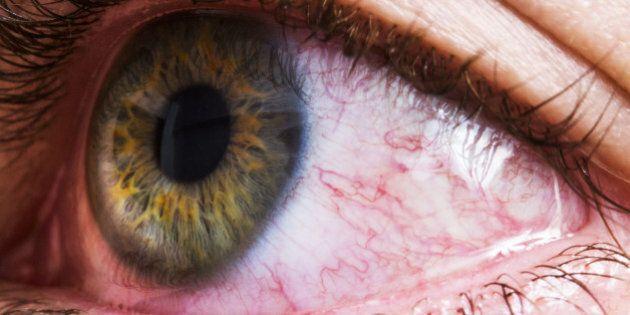 Closeup of bloodshot red