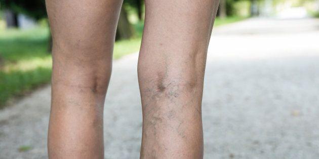 Les risques de souffrir de varices sont plus grands dans certaines familles héréditairement