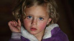 BLOGUE Les enfants sous le feu des attaques en