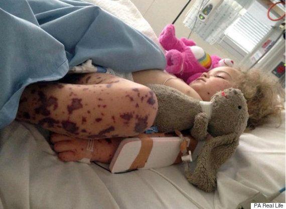 Une mère partage les photos de sa fille atteinte de méningocoque de sérogroupe B pour sensibiliser la