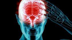 Alzheimer: des dommages au cerveau dès 40
