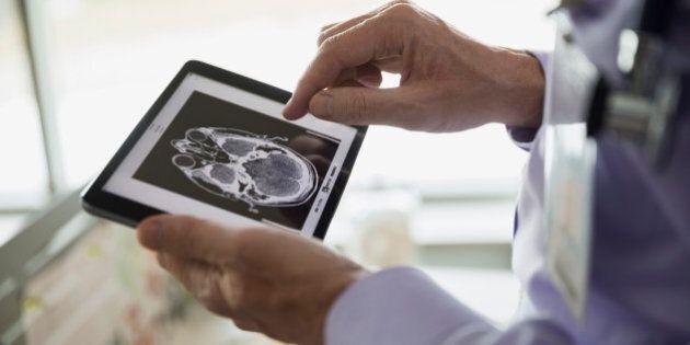 Doctor examining CT scan on digital tablet