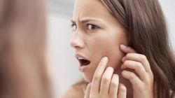 L'acné vous fait paraître plus jeune plus