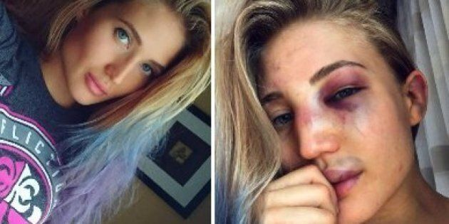 Anastasia Yankova, une star de la MMA montre la brutalité de son sport avec des selfies