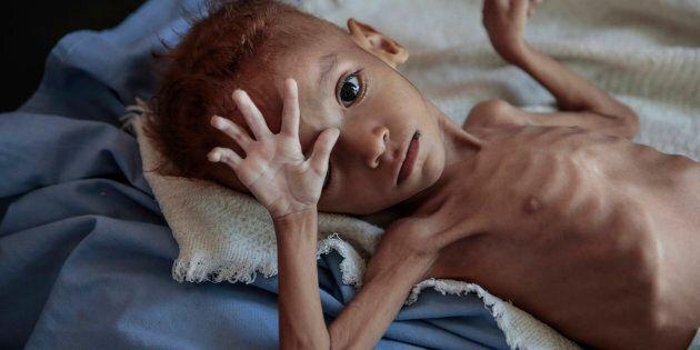 «Le Yémen est aujourd'hui un enfer sur Terre, non pas pour 50 à 60% des enfants, c'est un enfer sur Terre pour chaque garçon et fille au Yémen», a déclaré récemment le directeur de l'Unicef pour le Moyen-Orient et l'Afrique du Nord, Geert Cappelaere.