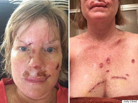 Cette femme atteinte d'un cancer de la peau vous met en garde contre le soleil et le bronzage