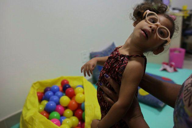 Agata da Silva, deux ans, est née avec une microcéphalie causée par une infection à virus