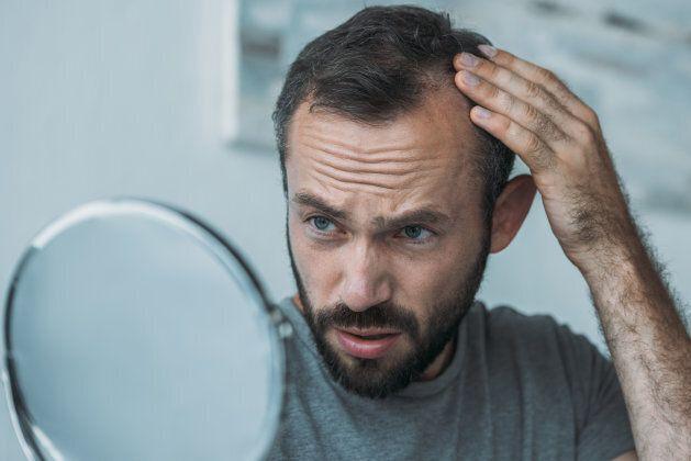 Consulter votre médecin si vous remarquez que vous perdez beaucoup de cheveux que d'habitude.