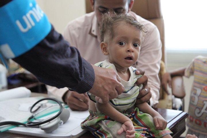 Le jeudi 20 octobre 2016 : Un garçon passe un test de dépistage de la malnutrition à Saada, au Yémen. Dans ce pays, près de 182 000 enfants souffrant de malnutrition sévère aiguë ont été traités en octobre 2016.