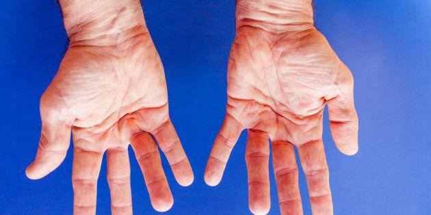 Souffrez-vous de la maladie de Dupuytren (et cela sans même le