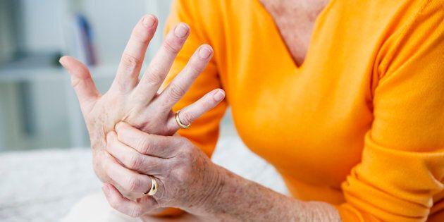 Avant les chiffres, il y a les personnes qui souffrent et dont la vie doit désormais se composer au rythme de l'arthrose, de la polyarthrite rhumatoïde ou de toute autre forme que prend l'arthrite.