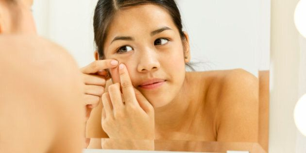Teenage girl having problems with pimples