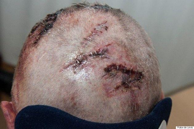 Appel à témoins: un individu gravement battu par des voleurs à