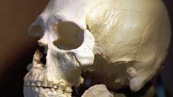Restituer les restes humains: du vertige juridique au vertige
