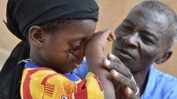Le noma, épouvantable maladie de la misère et de la malnutrition