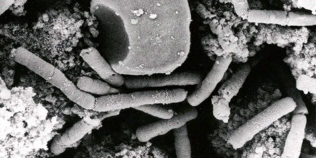 395552 02: (FILE PHOTO) Bacillus anthracis vegetative cells and spores, which cause the infectious disease...